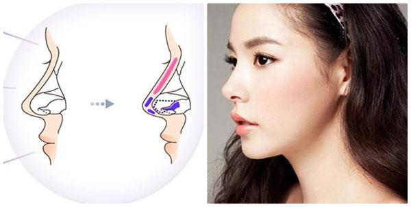 Nâng mũi Hàn Quốc là biện pháp cải thiện sống mũi được ưa chuộng và phổ biến hiện nay.
