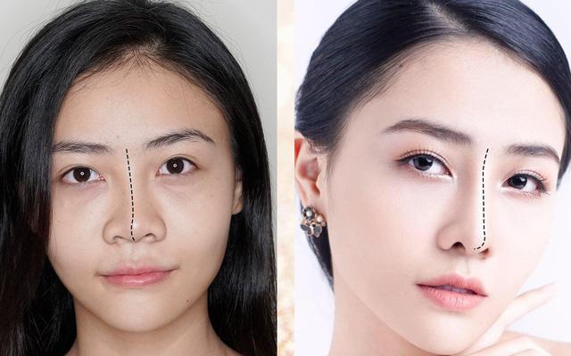 Sửa mũi, thu gọn cánh mũi ở đâu đẹp tại TPHCM?